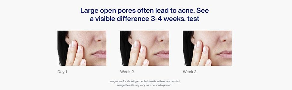 Large open pores often lead to acne. See a visible difference 3-4 weeks. test
