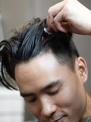 scalp care, scalp, treatment