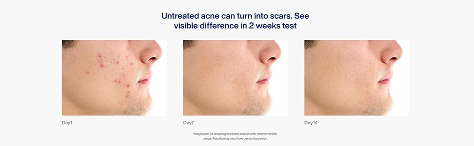 Untreated acne can turn into scars. See visible difference in 2 weeks test