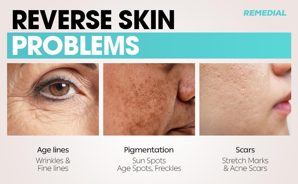 face moisturizer for women