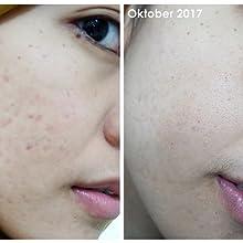 klairs vitamin c serum before and after
