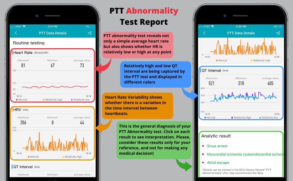 How to Interpret PTT Abnormality Test