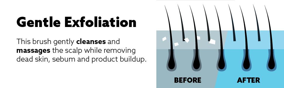 detangler brush, hair scalp massager, detangling brush , scalp brush, wet brush detangling brush,