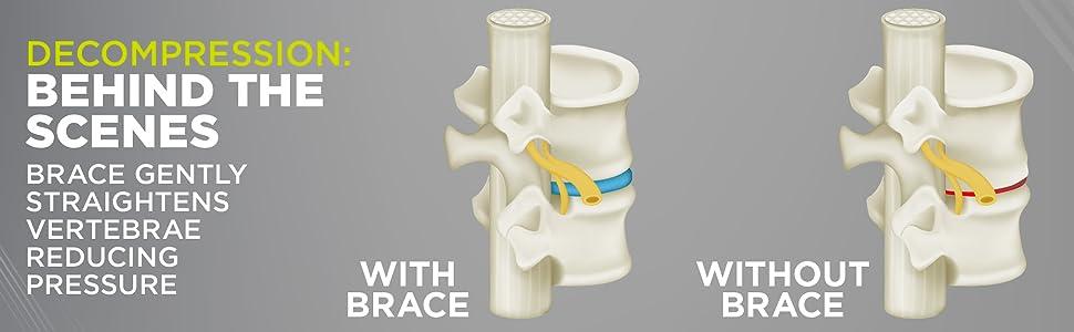 Use the spondylolisthesis back brace to straighten vertebrae