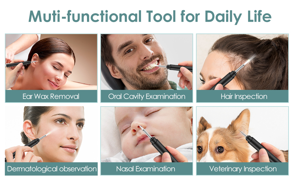 Comfortable and Functional  Ear Otoscope Camera