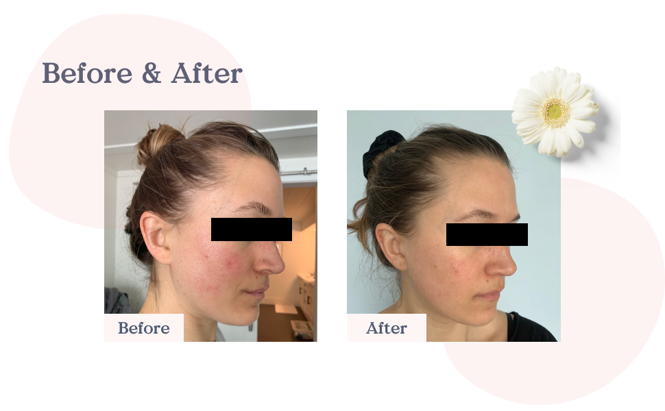 before and after, client review, good feedback