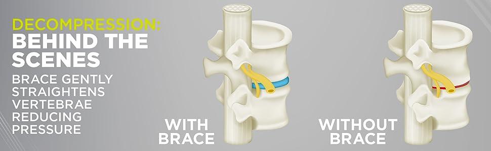 the Lumbar Decompression Back Brace gently straightens vertebra