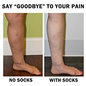 SAY HELLO TO YOUR COMPRESSION SOCKS