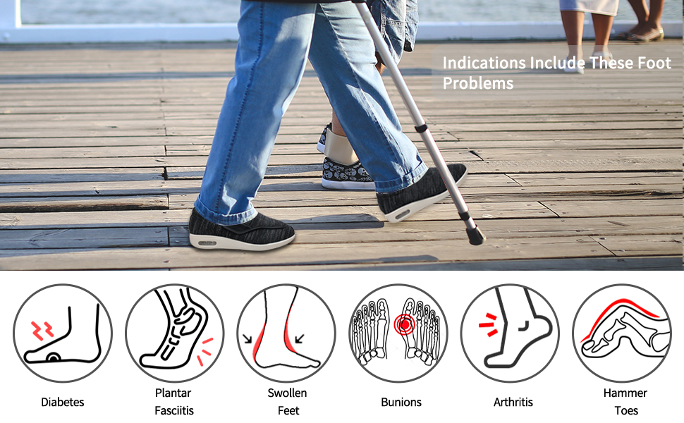 Indications Include These Foot Problems