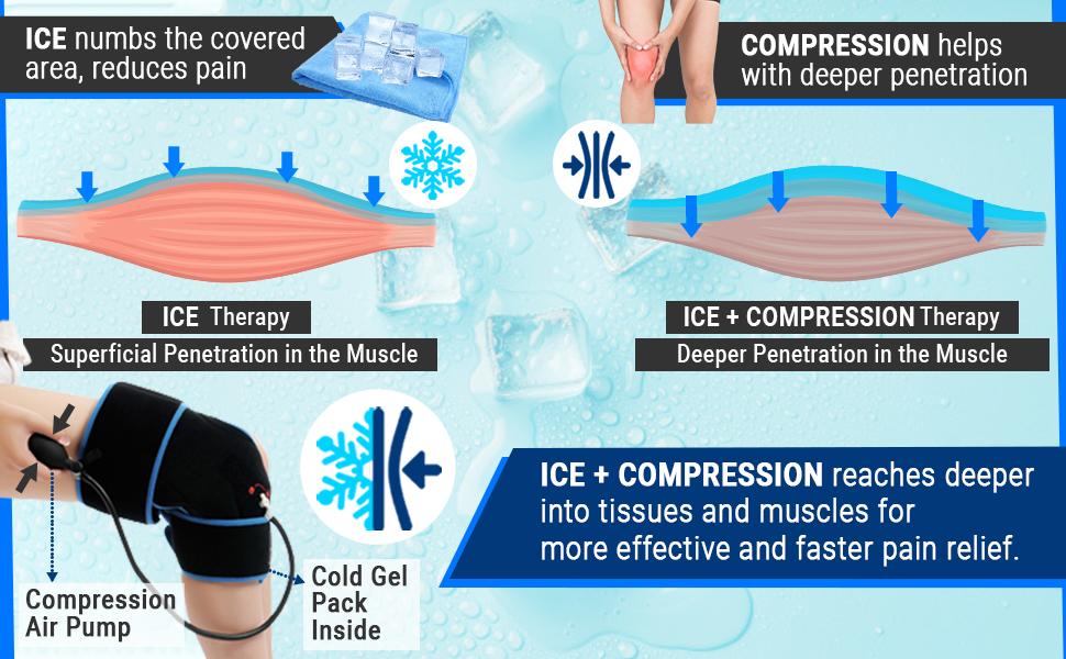 Ice+Compression_knee