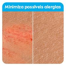 Texto: Minimiza possíveis alergias; Imagem: pele com irritação e sem irritação