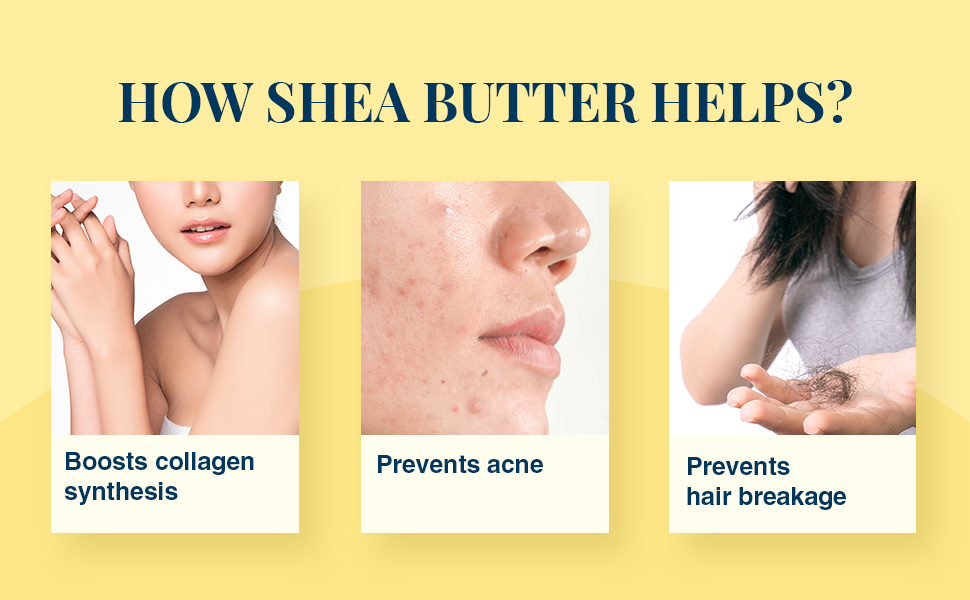 How Shea Butter Helps?