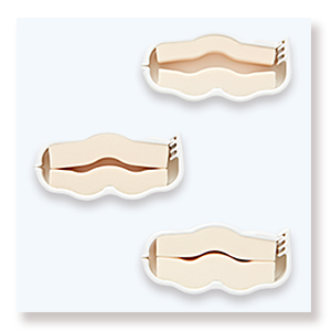 Incontinence clamp penile