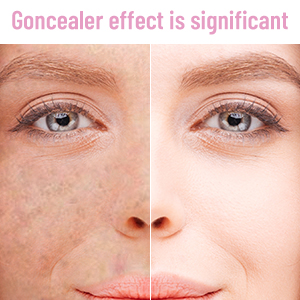 Goncealer effect is significant