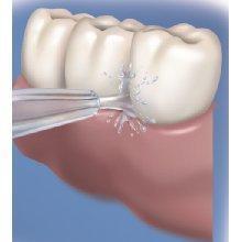 oral irrigator plaque removal