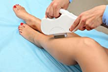 laser, hair removal, ingrown hair, razor bumps, razor burn, tend skin
