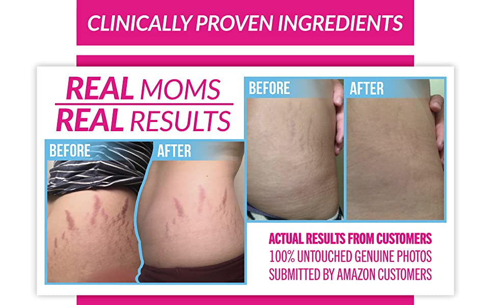 stretch mark cream remover anti stretch marks belly butter pregnancy scars scar body