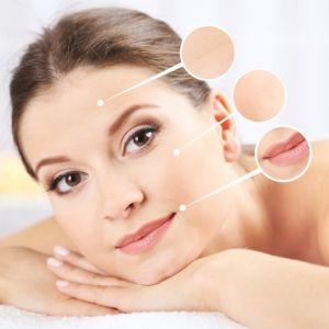 face oil acne scar treatment stretch mark removal carrier oil for essential oils vitamin e cream oil