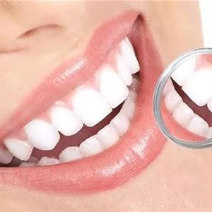 per Pulizia e Sbiancamento dei Denti