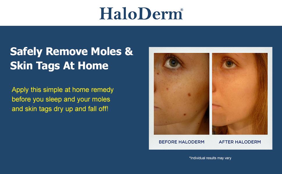 Amazon Com Haloderm Skin Tag Remover Mole Remover All