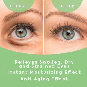 under eye treatment under eye bags treatment eye mask gel under eye dark circles treatment