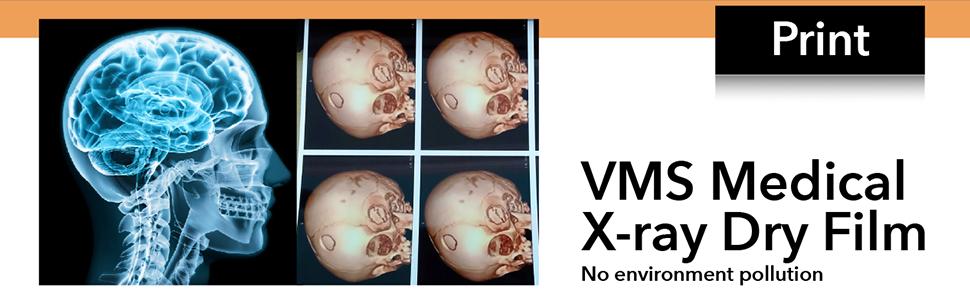 Medipro Print on VMS Medical X-rey Dry Film