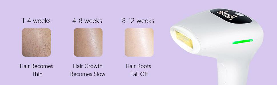 electrolysis permanent hair removal