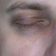 Dark circles from the lack of sleep