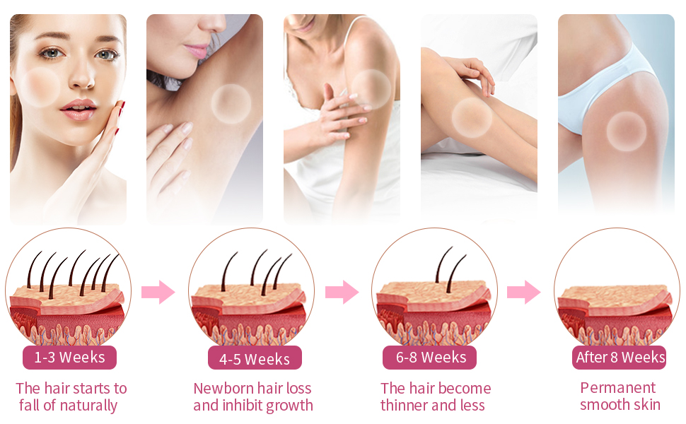 8-12 WEEKS TREATMENTS PERMANENT HAIR REMOVAL