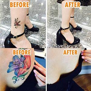 Corrector de tatuaje, funda de tatuaje, removedor de tatuaje ...