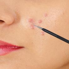 acne comedone extractor tool