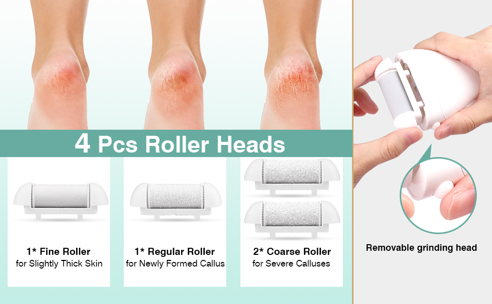 electric foot file for hard skin