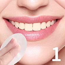 tooth whitening kit