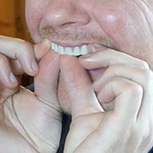 Fitting the Instant Smile Teeth