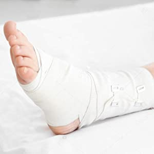 foot cast protector