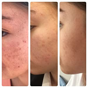 Visha Advanced Purifying Cleanser Results