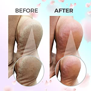 Callus remover, pumice stone, foot tub, foot rasp, callus remover gel, foot peel,