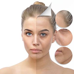 Collagen-Boosting Peptide