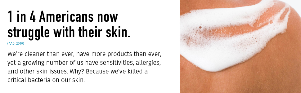 american skin sensitivities allergies skin issues bacteria