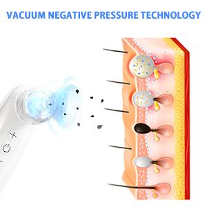 blackhead vacuum remover