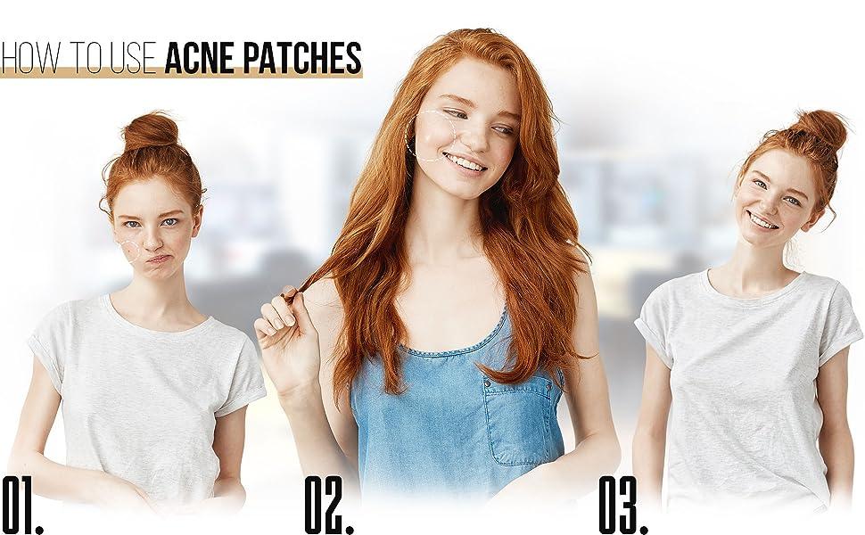 face, skin, blemish, pimple, acne, zit, sticker