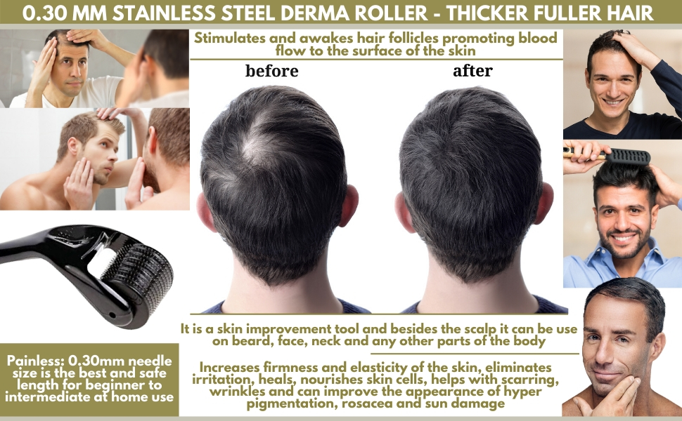 Derma Roller 0.30mm Stainless Steel needles