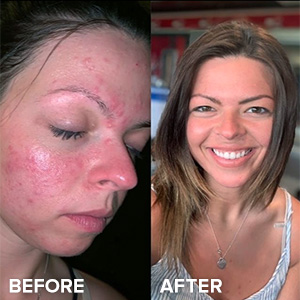 Josie Balka uses the CLEAR Regular Strength Kit to get rid of her acne, pimples and zits.