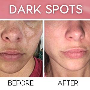 dark spots
