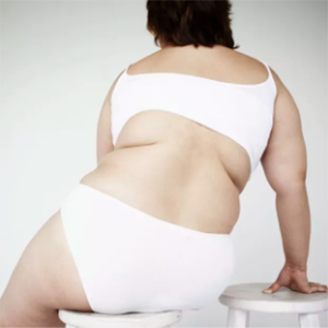 Waist and buttock obesity