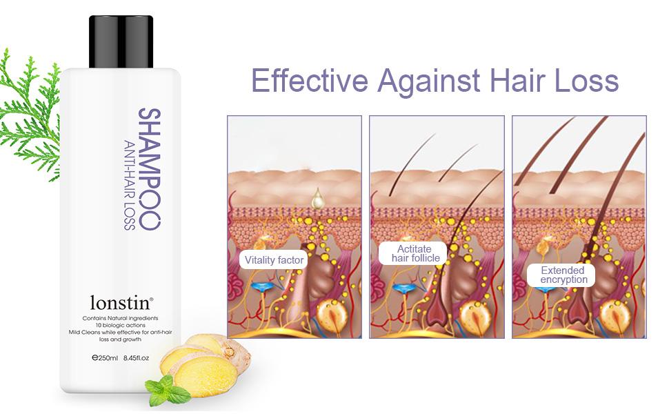 hair loss shampoo for women