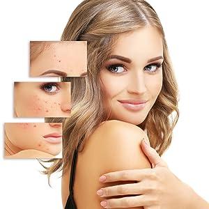 acne skin, pimple, dark spot, pigmentation, blemishes, blackheads, whiteheads, papaya soap, bathing