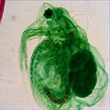 Daphnia under the microscope