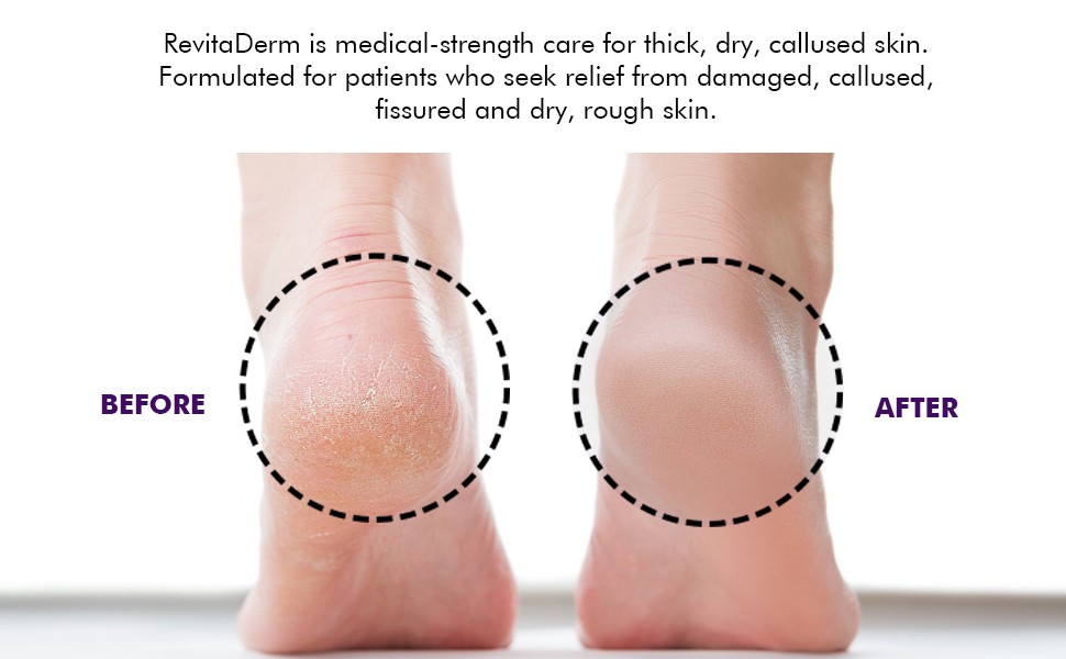 Urea Foot Cream with Foot Scrubber Callus Remover for Feet Foot Cream for Dry Cracked Feet