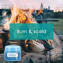 LMNOOP Wound Care Cream for Burn,Boil.
